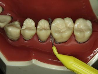 歯間ブラシ2